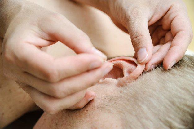 Auricular Community Acupuncture - Services & Treatments